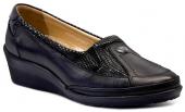Forelli Forellı 8k 26222 Siyah Bayan Ayakkabı Ortopedik